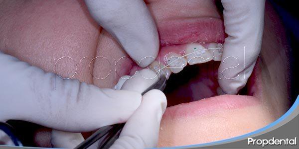 ¿quién puede beneficiarse de la ortodoncia?
