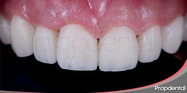 reconstrucción dental a través de las carillas
