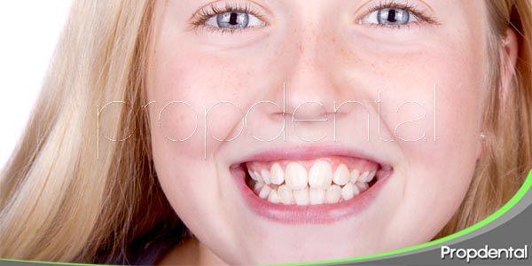 riesgos dentales de la adolescencia