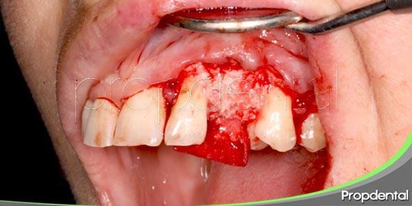 ¿será la regeneración dental el futuro de la odontología?