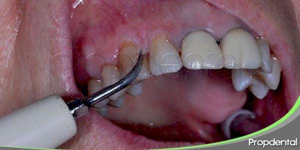 síntomas de la enfermedad de las encías
