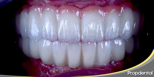 sonrisa completa con implantes en un día