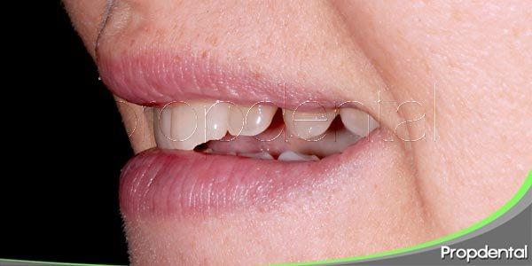 tratamiento para dientes rotos y agrietados