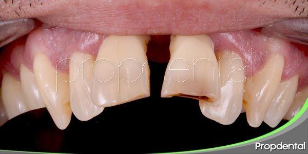 Cuatro hábitos que arruinan tus dientes