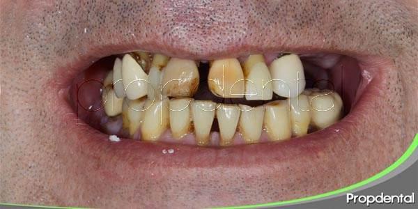 Entendiendo la enfermedad periodontal