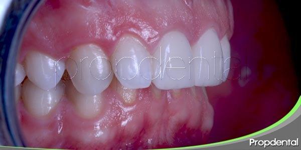 Examen de los dientes y estructuras de soporte