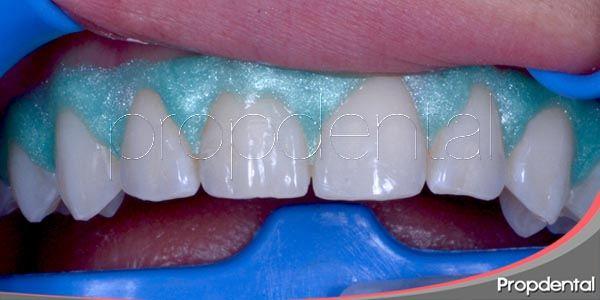 Guía para el perfecto blanqueamiento dental