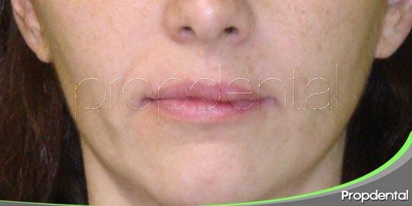 Posición de reposo mandibular