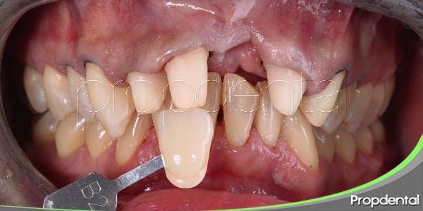 Preparando el diente para recibir una corona dental