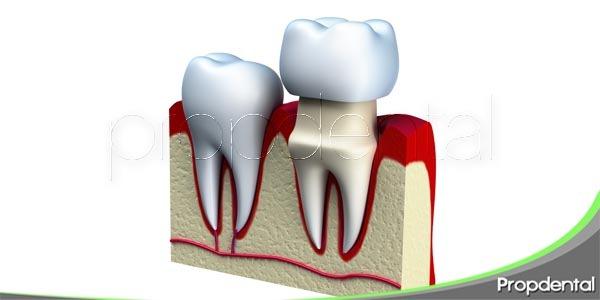 ¿Qué corona dental es mejor para ti?