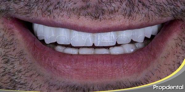 Restaurar tu sonrisa con implantes dentales