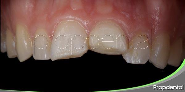 Tratamiento para las fracturas dentales