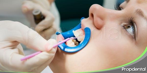 Utiliza selladores dentales contra la caries