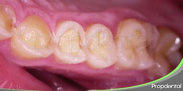 atrición dental