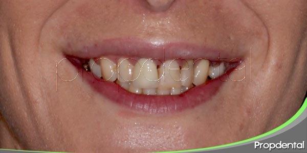 ¿cómo detecta el dentista los trastornos alimenticios?