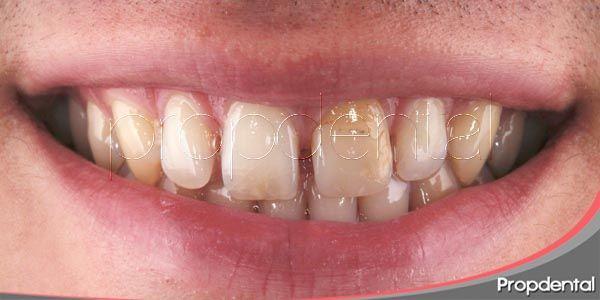 decoloración de los dientes
