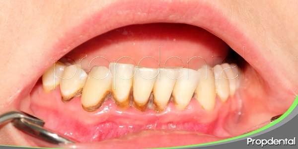 la gingivitis es un problema para tus hijos pequeños