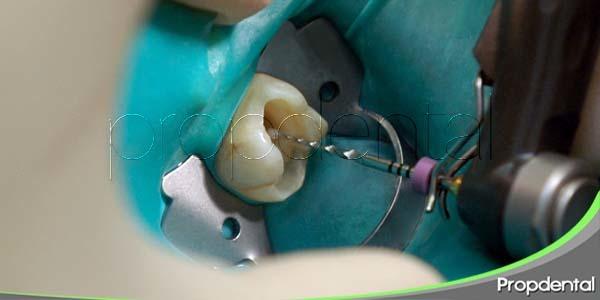 los mitos alrededor de la endodoncia
