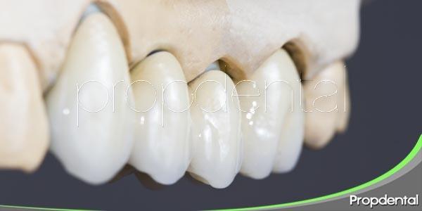 puentes dentales de porcelana