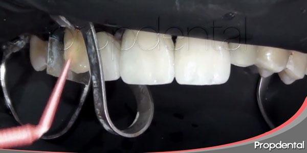 ¿qué es la adhesión dental estética?