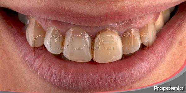 ¿qué tipos de decoloración dental existen?