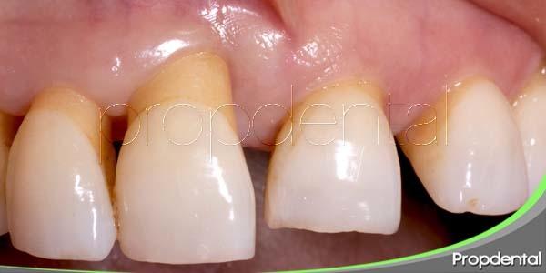 tratamiento de la enfermedad periodontal