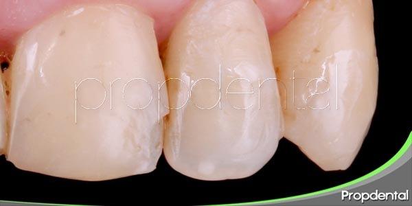 tratamientos para dientes astillados o rotos