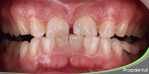 10 hábitos que pueden romper los dientes