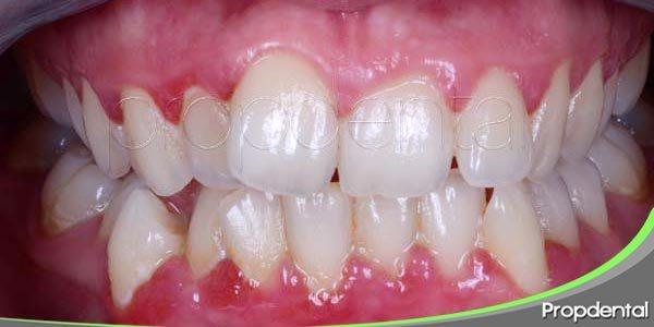 Causas de la gingivitis