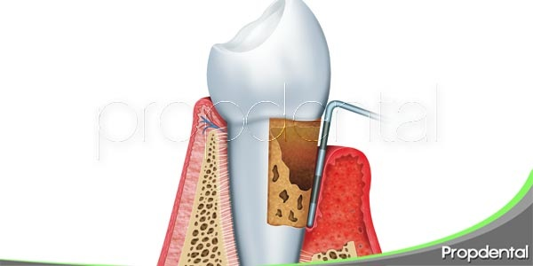 Como solucionar la gingivitis