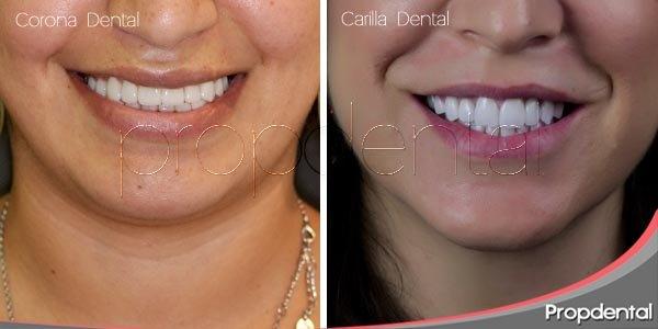 Diferencias entre carilla y corona dental