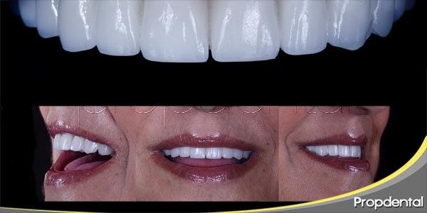 El cuidado bucal para implantes dentales