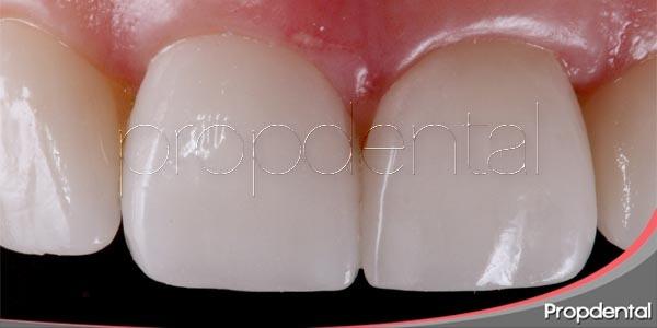 La manicura dental