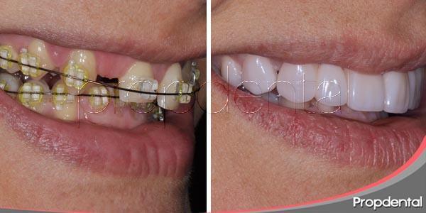 Ortodoncia e inserción de carillas dentales