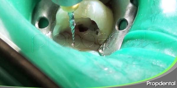 Posibles complicaciones durante la preparación de conductos radiculares