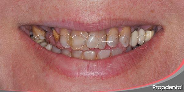 Alteración del color de los dientes por medicamentos