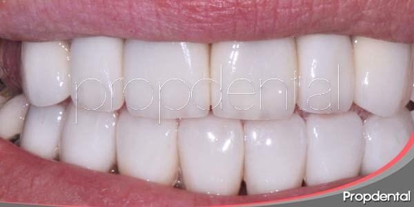 Carillas dentales de circonio