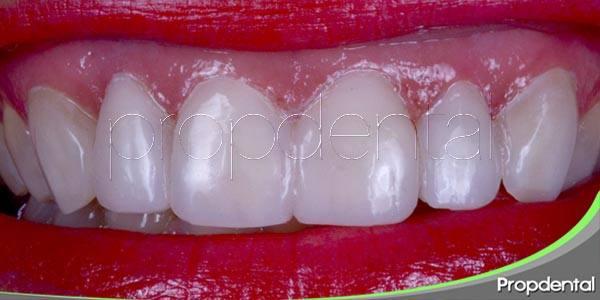 Casos compatibles con la carilla dental