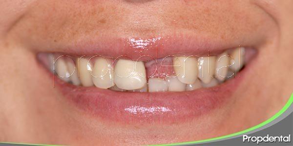 Como afecta la pérdida de un diente