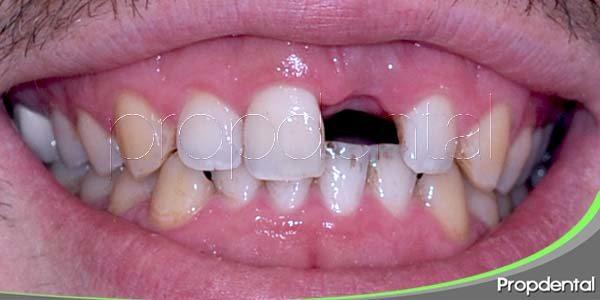 Como afecta la pérdida de una pieza dental