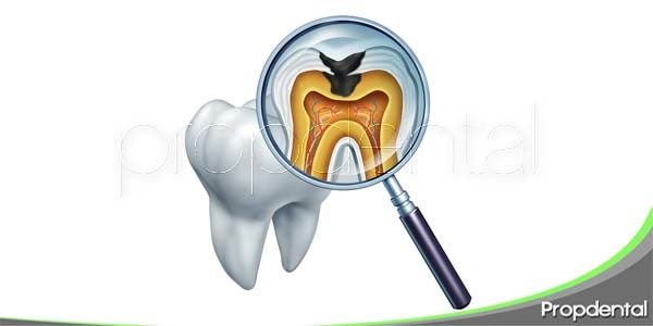 El diagnóstico de la caries dental