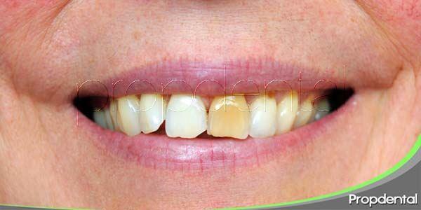 Eliminar las manchas dentales, un objetivo alcanzable