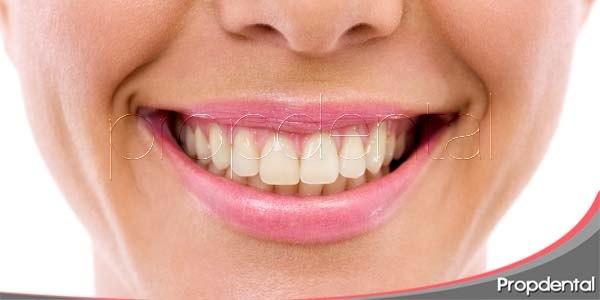 Estética dental: problemas de color en los dientes