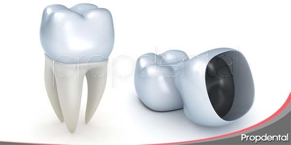 Función de la funda o corona dental