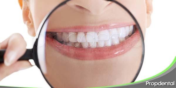 ¿Hasta qué punto es saludable la obsesión por unos dientes blancos?