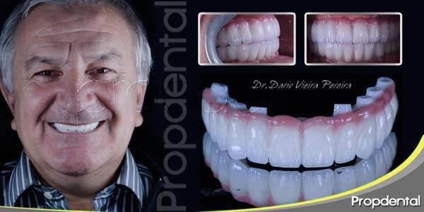 Implantes dentales en una sesión