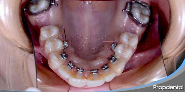 Las 9 propiedades más valoradas de la ortodoncia lingual