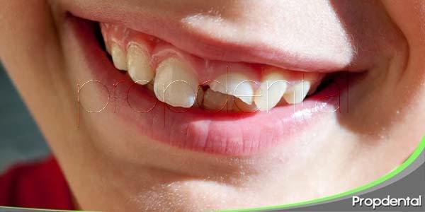 Los traumatismos en los dientes de leche