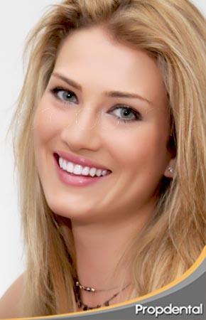 Mireia Lalaguna Sonrisa