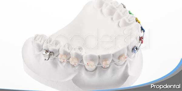 Ortodoncia preventiva, interceptiva y curativa